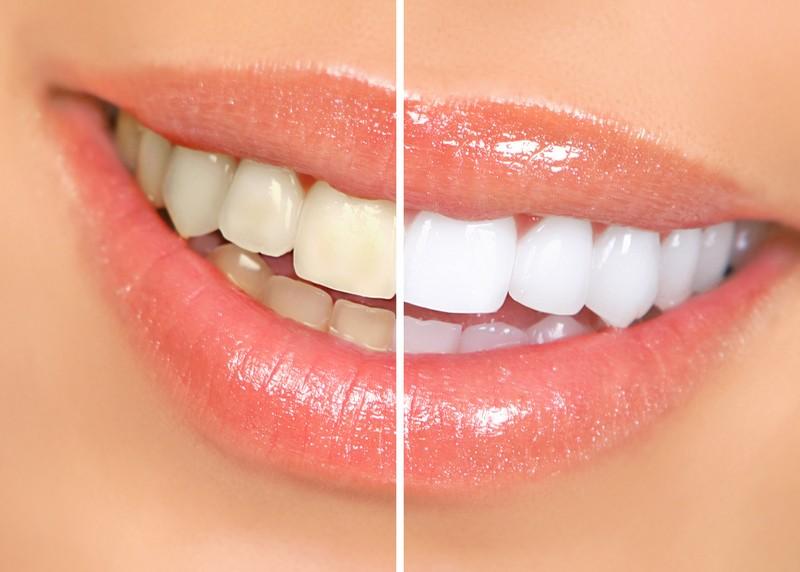 Teeth Whitening  El Dorado Hills, CA